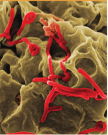 Photo Credit: What You Need To Know About Ebola (CDC)